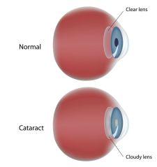 A cataract